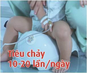 Trẻ tiêu chảy nhiều lần do nhiễm Rota virus