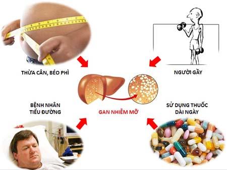 Nguyên nhân gây gan nhiễm mỡ
